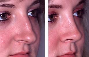 Denenberg Facial Surgery -- Nose, Intraoperative 3