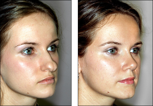 how to get rid of bulbous nose tip
