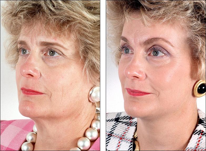 cosmetic surgery essays persuasive