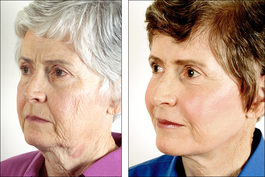 face lift and chemical peel