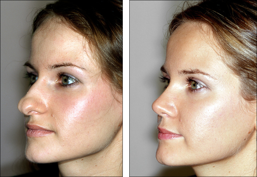 nose job best rhinoplasty surgeons Detroit