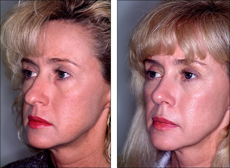 Dr Steven Denenberg S Facial Plastic Surgery Before And Afters Rhinoplasty Large Tip Noses 13