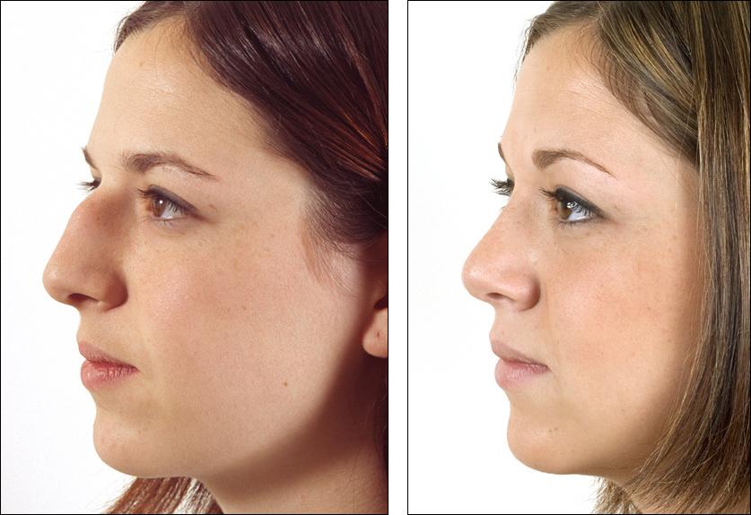 Nose bridge implant asian dating 10