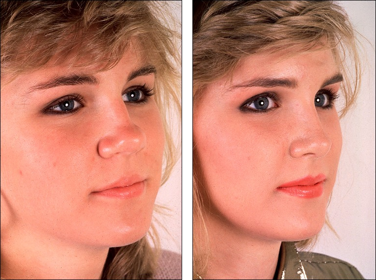 Dr Steven Denenberg S Facial Plastic Surgery Before And Afters Rhinoplasty Large Tip Noses 2
