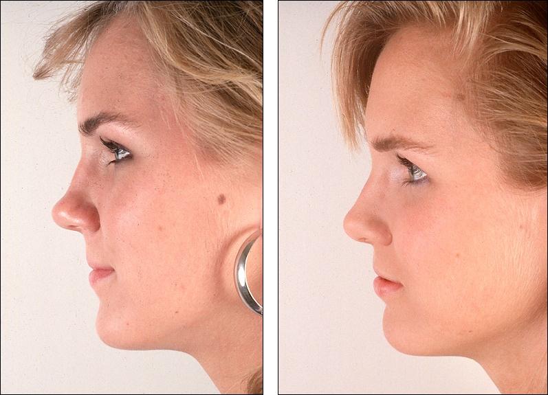 Как сделать кончик носа тонким