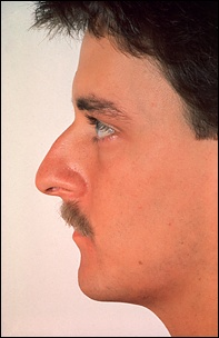 What Type Of Nose Is It Archive Skadi Forum