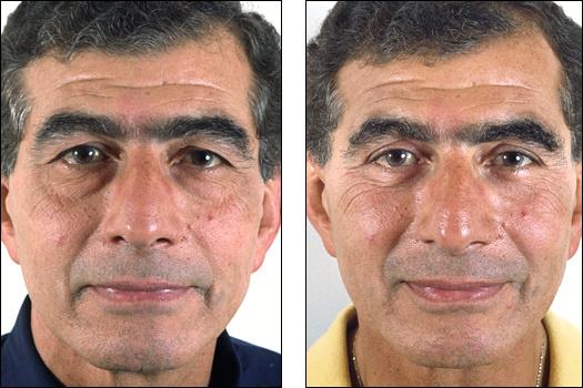 eyelid surgeryBad Double Eyelid Surgery