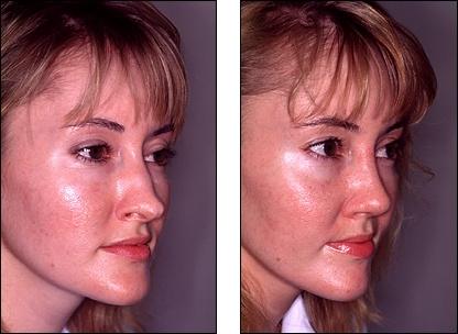 Dr  Steven Denenberg's facial plastic surgery before and
