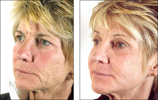 Dr Steven Denenberg S Facial Plastic Surgery Before And