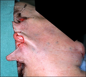 Excise - Excision and Surgery - Verywell